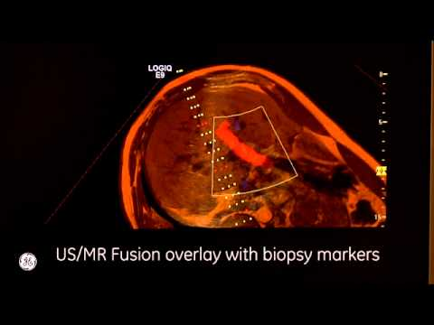 Ultrasound Fusion MR