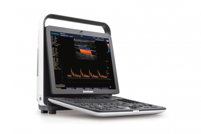sonoscape s9 pro portable ultrasound machine