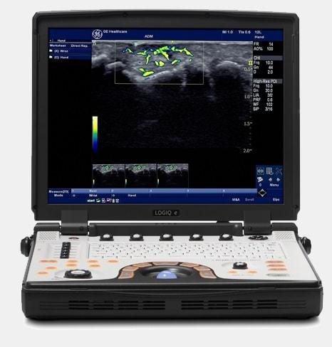 New GE LOGIQ e Nextgen portable Ultrasound machine